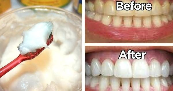 baking-soda-and-toothpaste-coconut-oil-toothpaste-red-seal-baking-soda-toothpaste-review